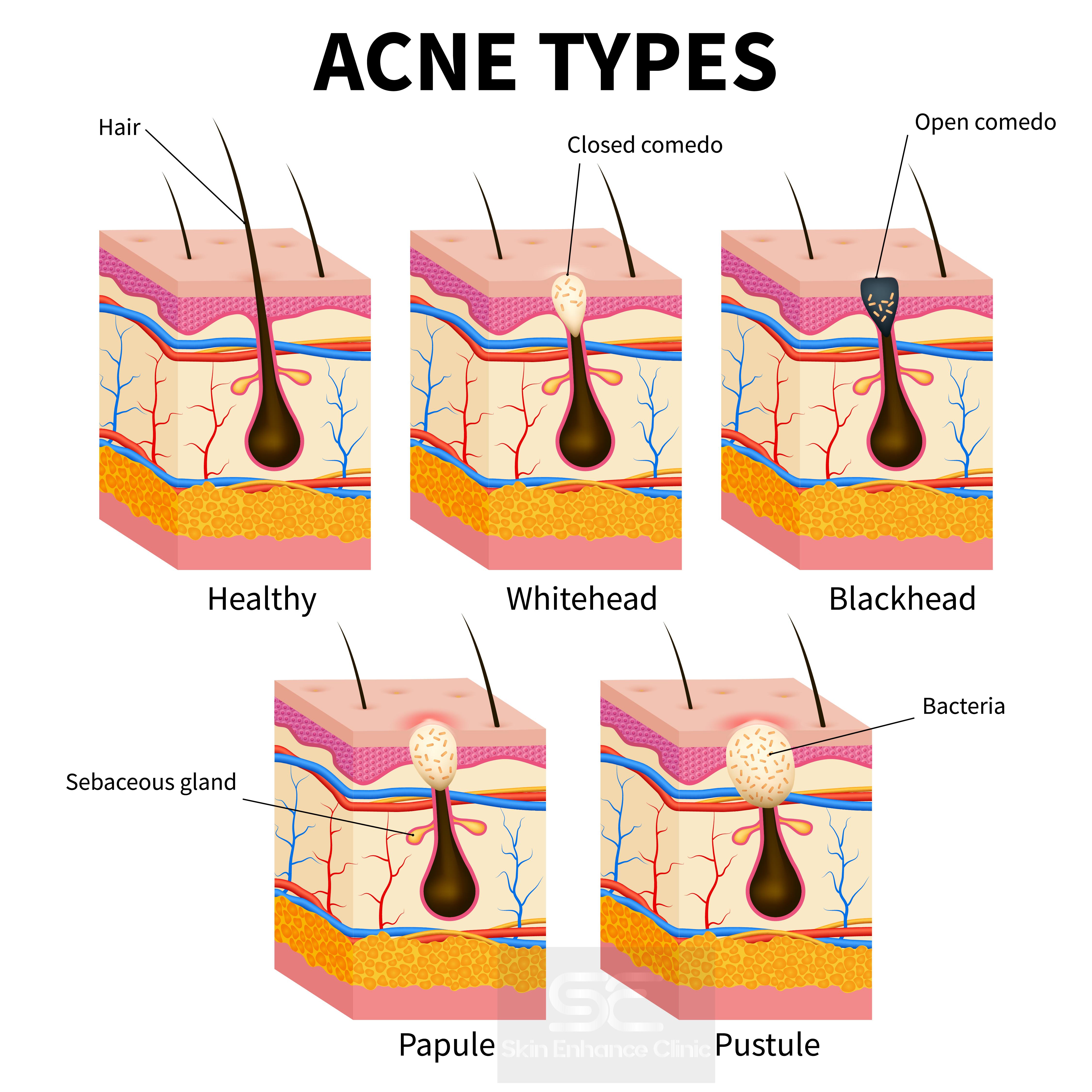 Dr Tash Blogs acne whitehead blackhead papule pustule