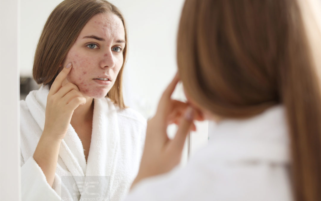 Acne: The unexpected, uninvited, unwanted pain in the face!