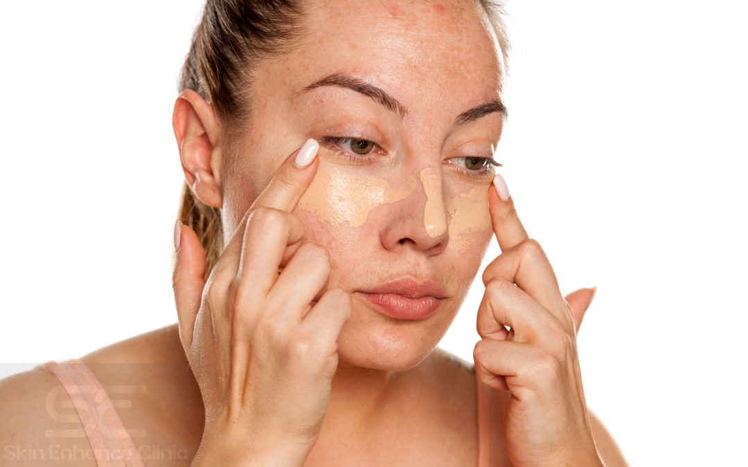 unevenly pigmented skin healthy radiant skin