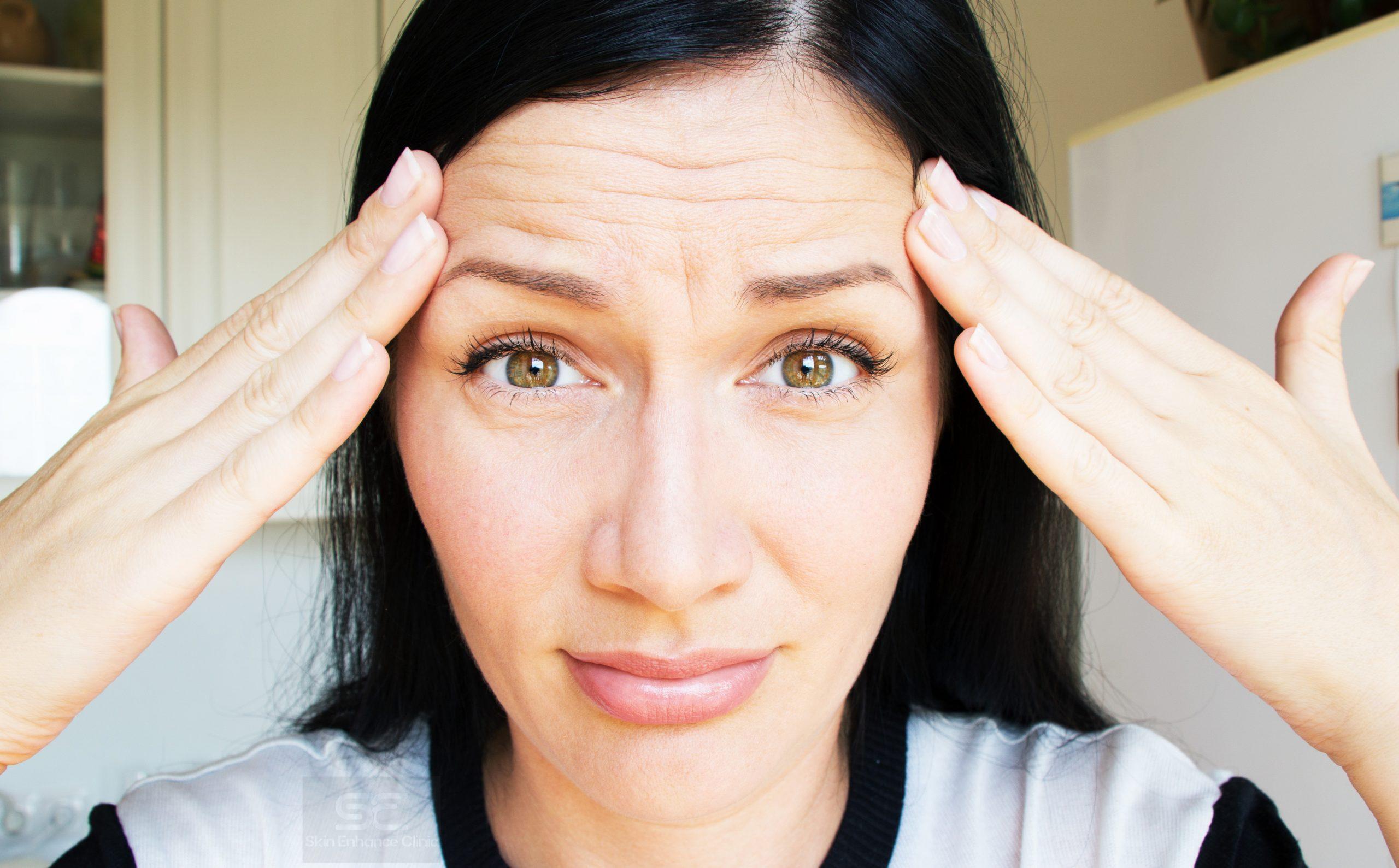 Wrinkles forehead botox