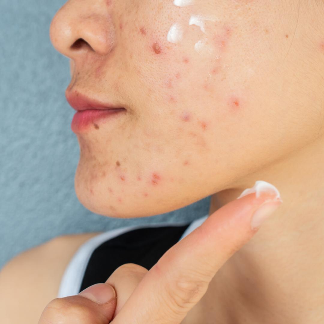 Acne treatment blog