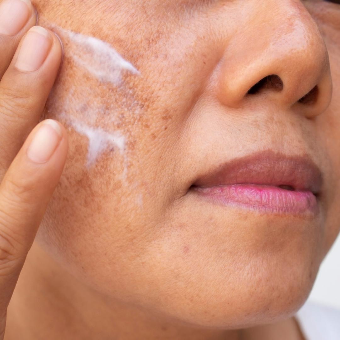 pigmentation cream blog